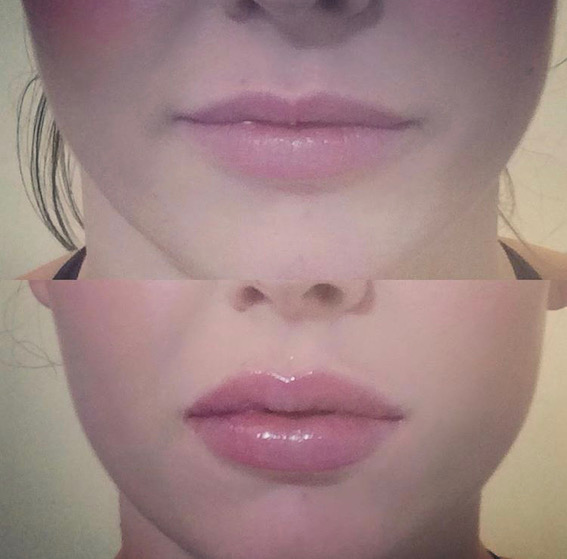 Lips by Dr Chinsee