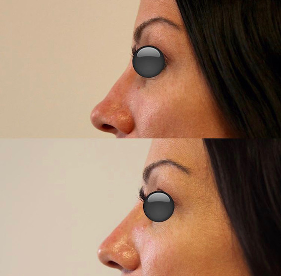 Non-Surgical Liquid Rhinoplasty By Dr Chinsee